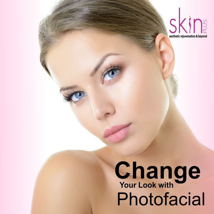 Photo facials help in treating a number of #skin conditions like brown spots, sun damaged skin, #facialredness, and open pores, improves skin texture and reduces #finelines. It's time Change Your Look with #Photofacial