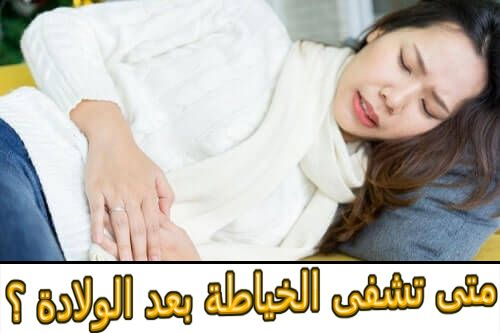 متى تشفى الخياطة بعد الولادة