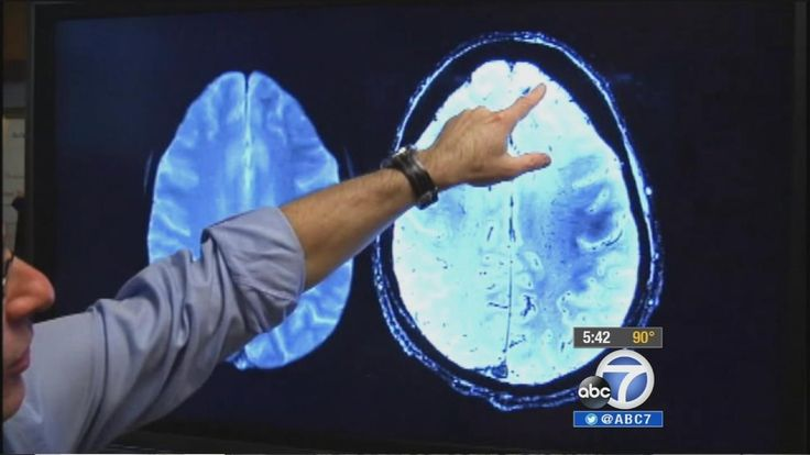 UCLA STUDY: NON-DRUG TREATMENT MAY IMPROVE MEMORY IN ALZHEIMER'S PATIENTS -   Researchers at UCLA say they've developed a program that shows for the first time memory loss being reversed in some patients.