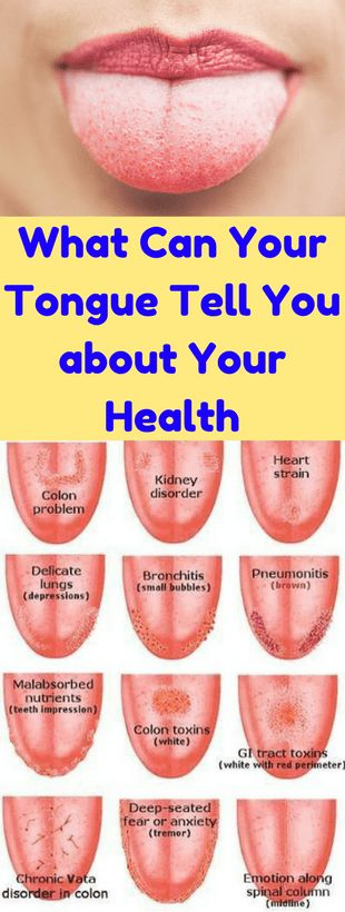 "When we comment something like ""the food is delicious"" after a meal, just make a note that it's your tongue that tells you about the taste. We can know the difference in taste due to the signal generated by the tongue, it is also an important body part which support gustatory function. What else tongue …"