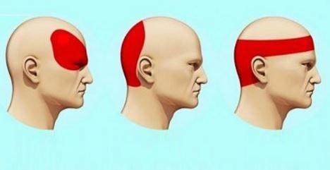 Comment se débarrasser des maux de tête en seulement 5 minutes sans aucun médicament