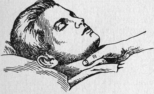 Сдавление правого каротидного синуса при приступе пароксизмальной тахикардии