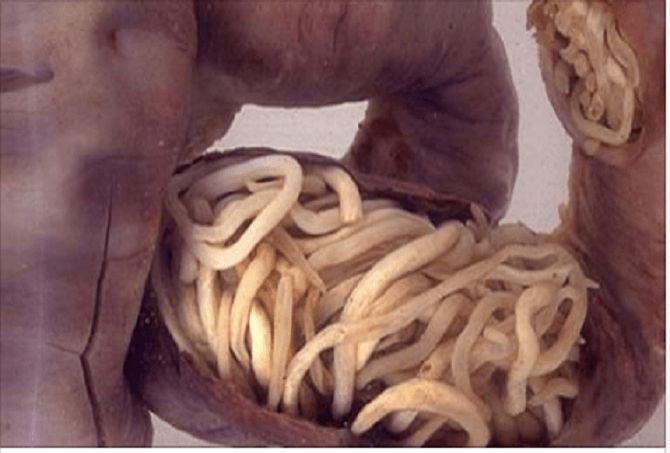 Les 25 meilleures id es de la cat gorie gros intestin sur for Eliminer les vers