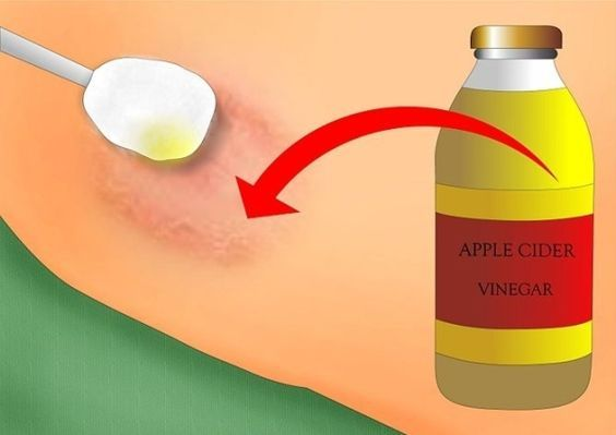 How to get rid of ringworm? Remedies for ringworm treatment. Cure ringworm fast and naturally at home. Prevent ringworm. Heal ringworm. Avoid ringworm.