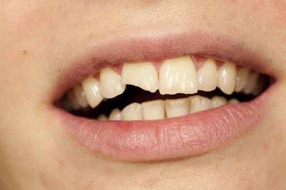 12,5% des garçons de 12 ans ont des dents cassées, contre seulement 6,8% des filles.Article trouvé sur le quotidien l'avenir .net...LIFE..santé