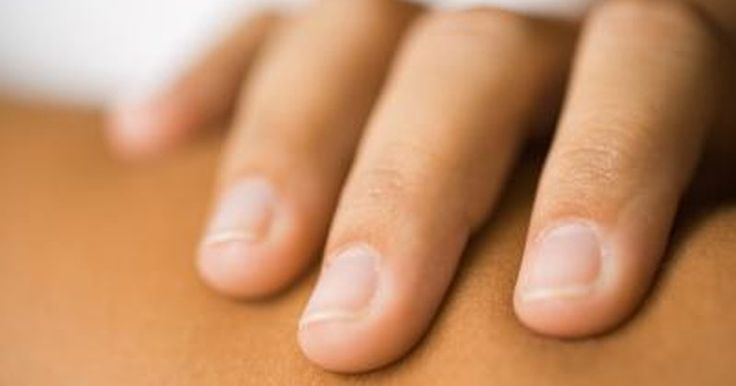 Cause of Vertical Ridges on Fingernails | LIVESTRONG.COM