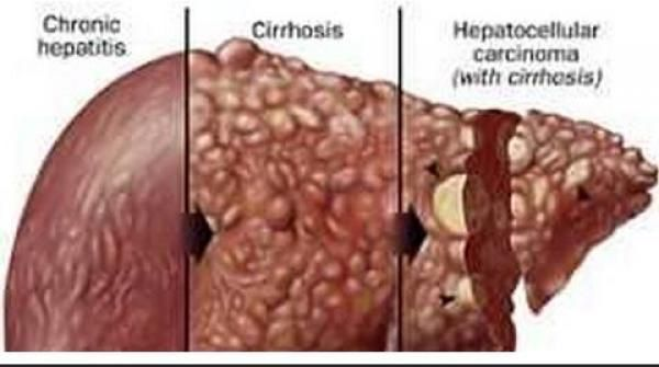 how to fix liver damage
