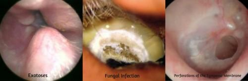 Fungal otitis externa also called otomycosis is mainly ...