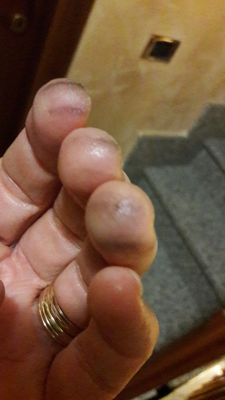 After playing violin