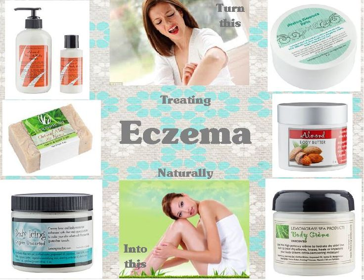 Have eczema? Lemongrass Spa has products that can help you treat it naturally. www.ourlemongrassspa.com/4106