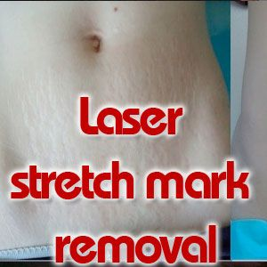 Laser stretch mark removal http://stretchmarksguide.org/laser-stretch-mark-removal/ #Laser #stretch #mark #removal