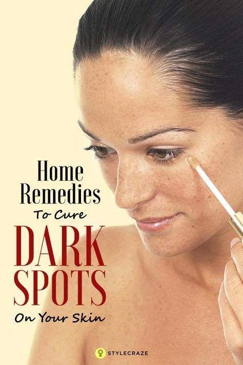The most effective spot removing technique is to mix a teaspoon of honey with 4-5 drops of lemon juice. You can also add a few strands of saffron to it. Apply it to the affected areas and wash off after 20 minutes. Lemon and honeywork as natural bleaching agents. Honey also adds moisture. Over time it will be like that black spot on skin never even happened to you!10 Home Remedies To Cure Dark Spots On Your Skin