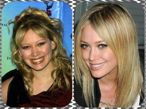 Hilary Duff Plastic Surgery Reports Investigated   herinterest.com
