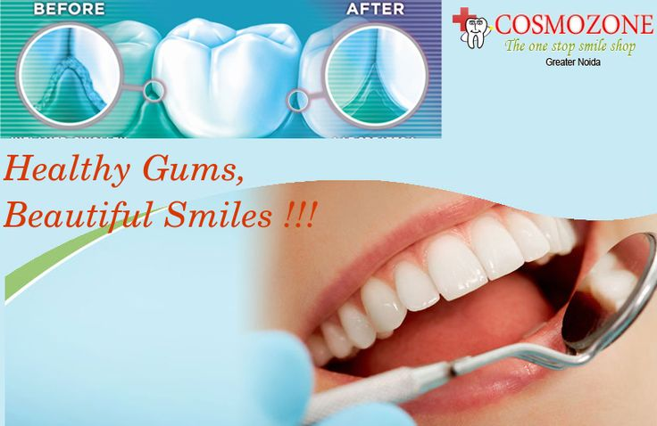 Emphasize the Beauty of your Smile forever with us. Get the Brighter & Healthier Smile by #Gum Surgery.  Enhance your Look Today. Visit:goo.gl/SjqHfe