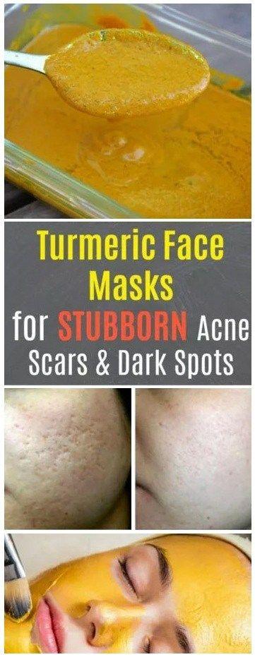 TURMERIC FACE MASKS FOR ACNE SCARS & DARK SPOTS #…