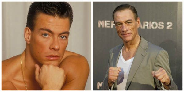 Examples of bad celebrity plastic surgery