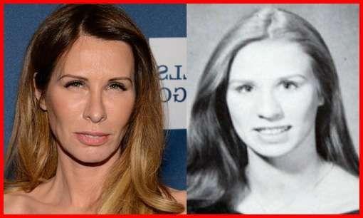 Carole Radziwill Plastic Surgery Before & After