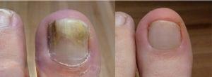 Laser Treatment For Fungal Nails #cutera #lasergenesis #fungalnails #fungalnailstreatment #podiatrist-camberwell #podiatry-clinic-camberwell #podiatrist-melbourne #cutera-laser #chris-gardner #laser-podiatry-centre #laserpodiatrycamberwell