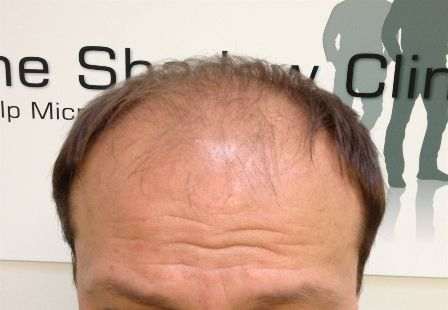 Male Pattern Balding can be dealt with in many ways, both surgical and non-surgical. The Shadow Clinic offers a non invasive, drug free treatment for Male Pattern Baldness. Our male pattern hair loss treatment Is safe, scar free using scalp micro pigmentation and its results are immediate. Find out more on Male Pattern Baldness Cure and Treatment from our website.