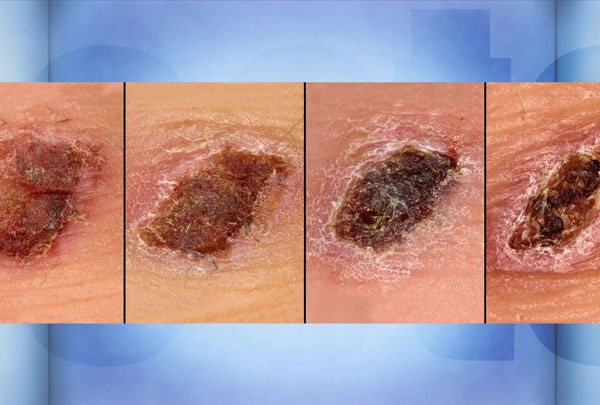 wound healing research papers Study into the process of wound healing print reference this this means that about three quarters of the papers were of good quality their research also led them to double- blinded 2009 aging influences wound healing in patients with chronic lower extremity wounds treated in.
