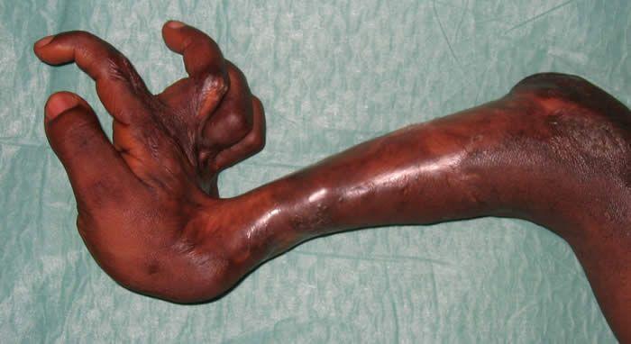 Aide aux Lépreux Emmaüs-Suisse - Cameroun