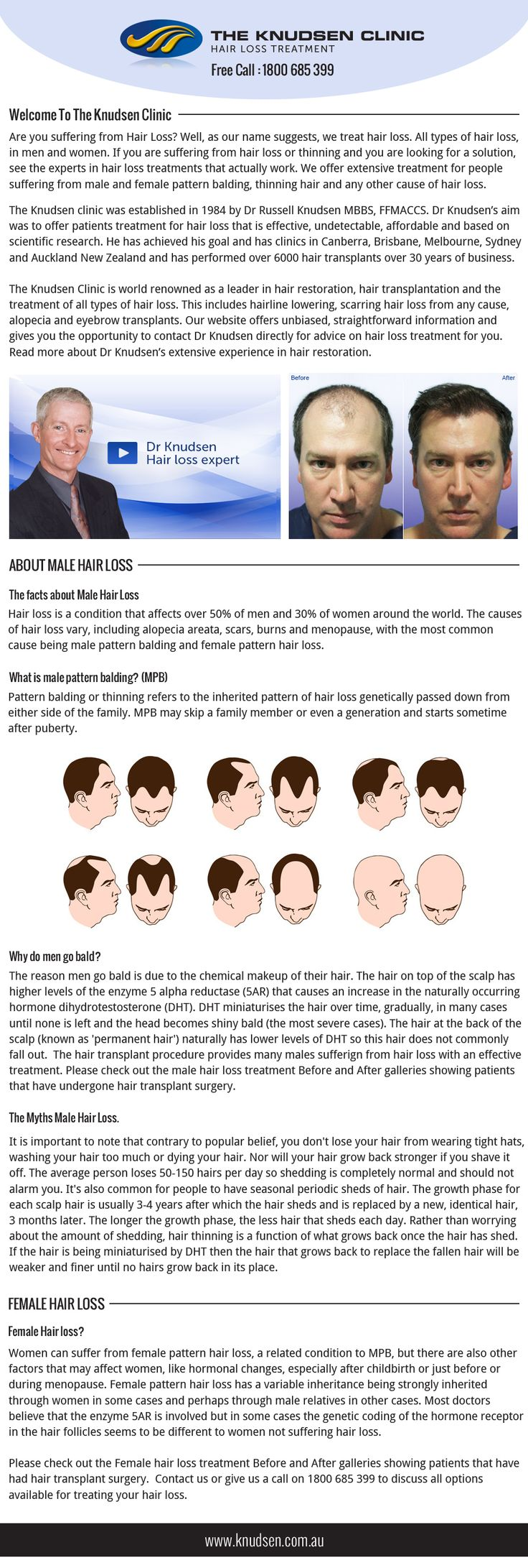 Best Treatment For Thinning Hair Ideas On Pinterest - Onion juice for hair regrowth review