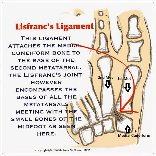Center for Ankle & Foot Care Blogspot: Fantasy Football, Matt Cassel and why a Lisfranc's...