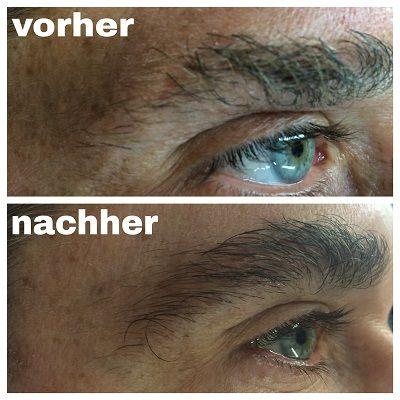 M2Brows_Augenbrauenserum_vorher_nachher