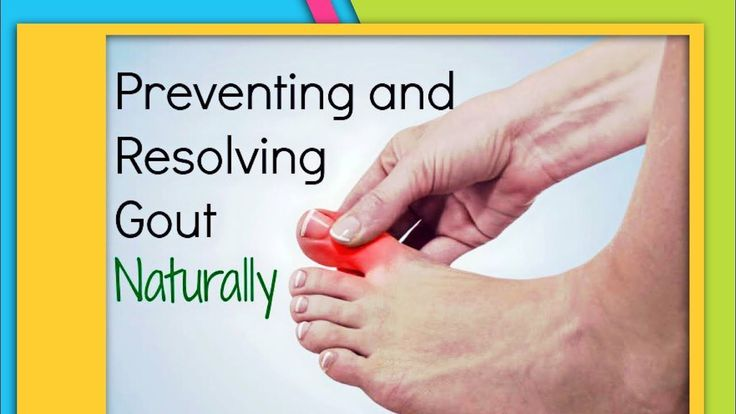 TOP 3 Herbal Supplements to Heal GOUT. Natural GOUT Treatment/RELIEF Removal of Crystals Joints https://youtu.be/gCSRV4k2MZQ http://HomeRemediesTV.com/Best-Supplements 3 BEST Natural GOUT Treatment/RELIEF Removal of Crystals Joints. CURE GOUT Naturally wi #LiverDetox24Hour