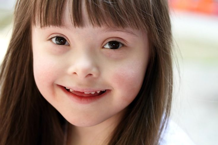What would happen if people with  Down syndrome  ruled the world?