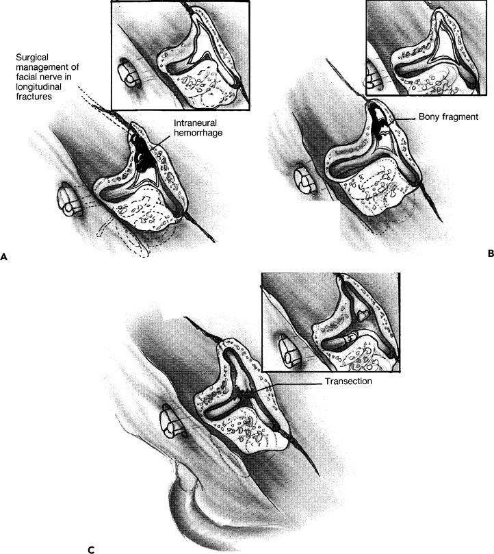 How could facial twitching and brain tumors boazudas Enormous.. WOW!