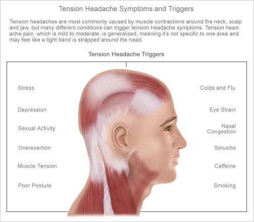 die besten 25+ tension headache symptoms ideen auf pinterest, Skeleton