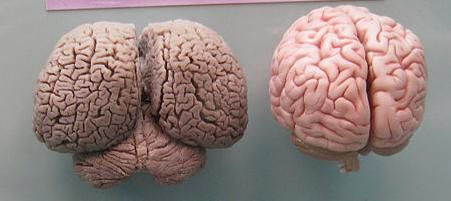Human brain on the right, and the dolphin brain is on the left. Crazy, right?