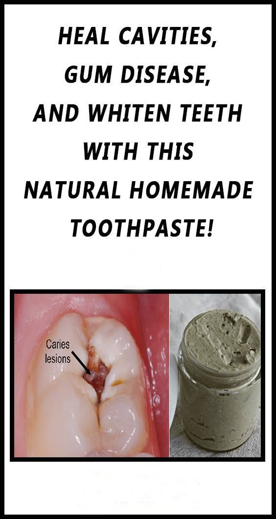A standout amongst the most imperative parts of our bodies is our teeth! They are there everlastingly, and we just get one sets. With all the garbage nourishment we eat nowadays, it is critical...
