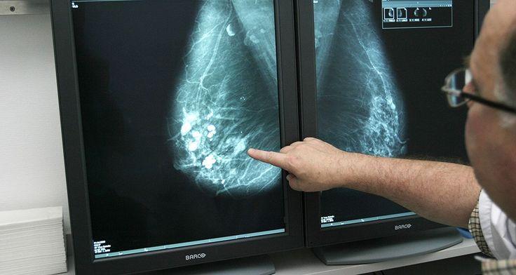 L'intelligence artificielle aux portes de l'imagerie médicale