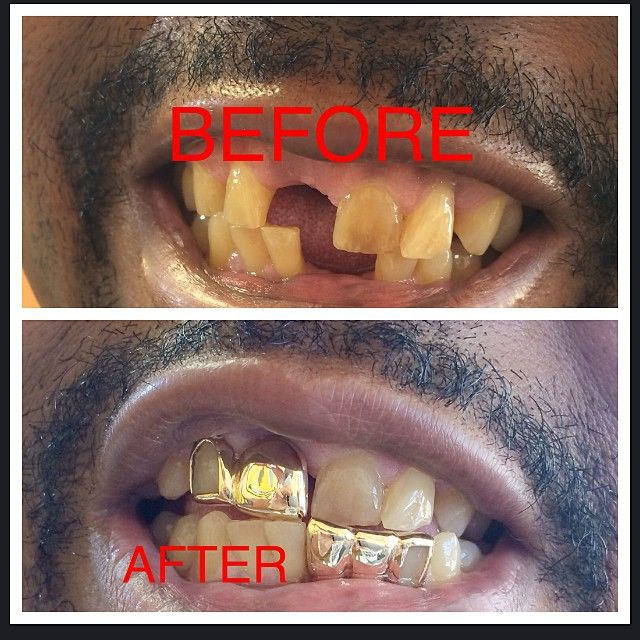 """BEFORE AND AFTER PICTURE OF A CLIENT OF OURS YEA WE THAT DAMN GOOD! CHECK US OUT FOR ALL MISSING TEETH AND GAP FILL INS!! ______________________________ #StLGRILLZZ """"HOME OF THE CUSTOM GRILLZ in the MIDWEST"""" ORDER TODAY Delmar Loop 314-441-6838 Email: sfi.stlouis@gmail.com PayPal accepted SHIPPING NATIONWIDE!!!!"""