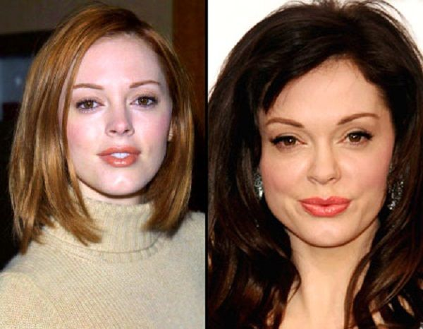 did rose mcgowan have plastic surgery on her face did rose mcgowan have plastic surgery on her face