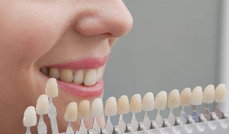 Te presentamos algunas consecuencias de usar carillas dentales