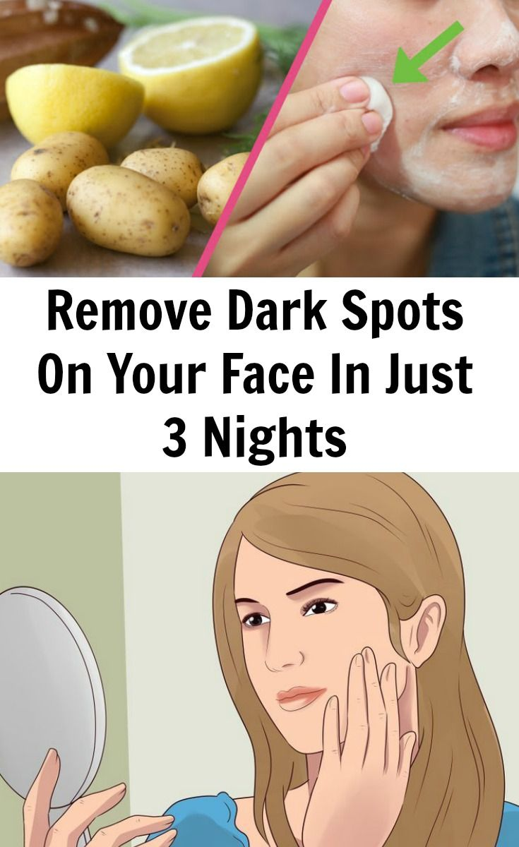 Many black spots or dark patches can be easily lightened or eliminated to restore a glowing facial complexion. Dark spots, patches and other marks on the face may be due to excess secretion of melanin on the skin. Some factors that can lead to this condition include over exposure to the sun, vitamin deficiencies, hormone …