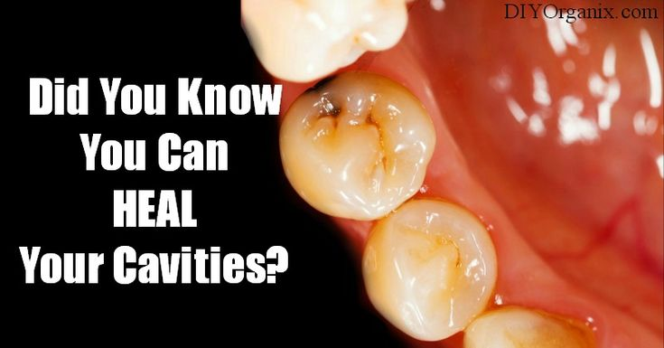 Did you know you can heal your cavities!?