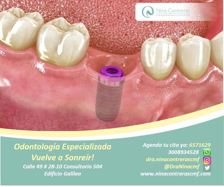 !Nuestra pasión verte Sonreír¡ Especialistas en Implantes y Prótesis Dentales Atrévete a generar cambios y déjanos conocer tu caso. Pbx: 6571629 - WhatsApp: 3008934528 http://ninacontrerascmf.com/