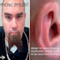 Rich Lee has freed himself from the frustrations of misplacing or having to untangle his headphones ever again. Implants in his tragus—the stiff protrusion just in front of your ear canal
