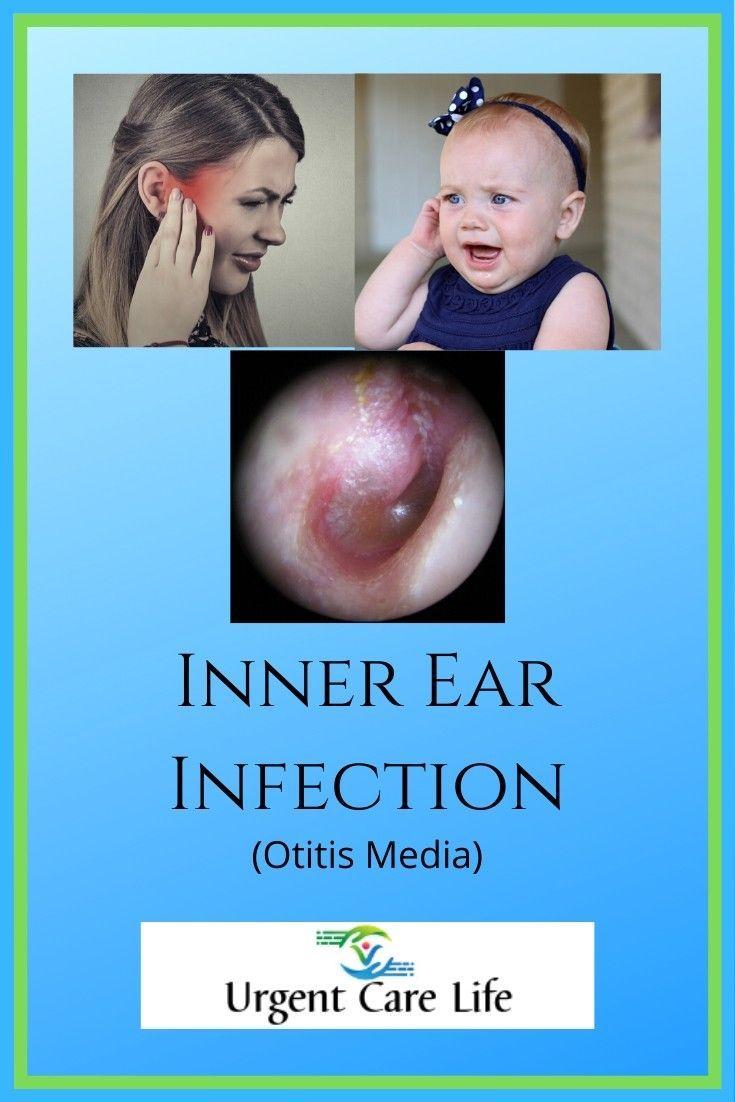 Inner Ear Infection Otitis Media Otitis Media Ear Infection Otitis