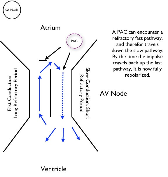 The fast pathway has a long refractory period whereas the slow pathway has a short refractory period. If a premature atrial beat occurs early enough to be in the refractory period of the fast pathway, conduction will not occur across this pathway, but conduction can still be possible by way of the slow pathway to reach the AV node. This begins a reentry tachycardia.