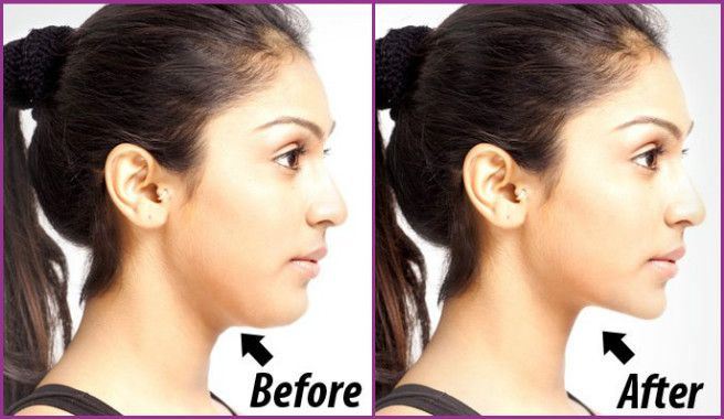 fabartdiy-5-Easy-Exercises-To-Get-Rid-Of-Double-Chin-And-Neck-Fat-before-after