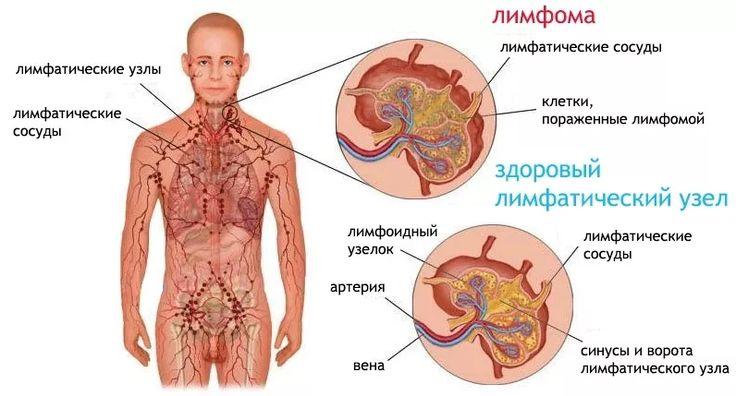Рецепты народной медицины при лимфоме Ходжкина