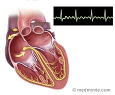 Atrial flutter (AFL) is a common abnormal heart rhythm, similar to atrial fibrillation, the most common abnormal heart rhythm. Both conditions are types of supraventricular (above the ventricles) tachycardia (rapid heart beat). In AFL, the upper chambers (atria) of the heart beat too fast, which results in atrial muscle contractions that are faster than and out of sync with the lower chambers (ventricles).