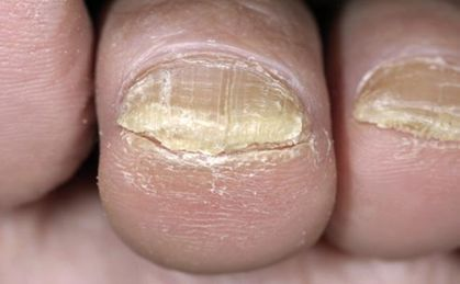 Tell tale signs of calcium deficiency White patches on the nails or cracked nail