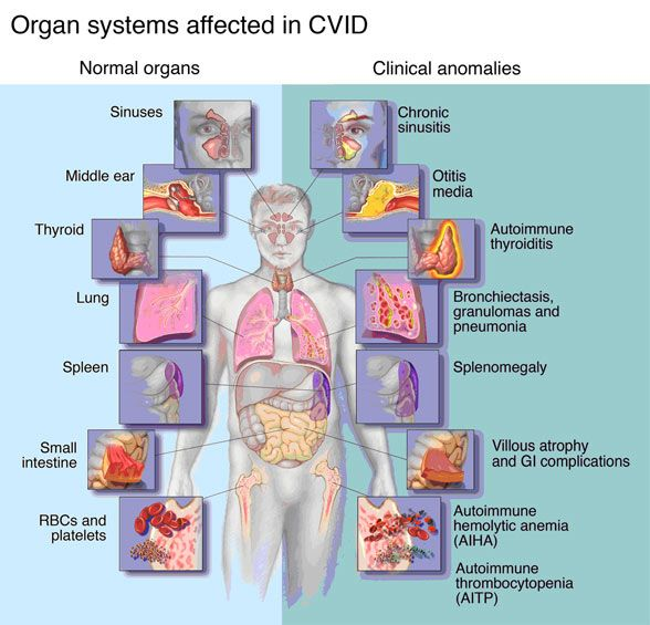 Info regarding how this CVID affects our bodies.