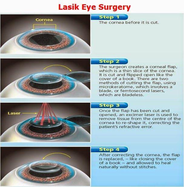 1000 Ideas About Lasik Eye Surgery On Pinterest Health